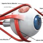 Ein Augenlid ist eine dünne Hautschicht, die das Auge bedeckt und schützt. Das Auge enthält einen Muskel, der das Augenlid zurückzieht, um das Auge entweder freiwillig oder unwillkürlich zu öffnen. Augenlider des Menschen enthalten eine Reihe von Wimpern, die das Auge vor Staubpartikeln, Fremdkörpern und Schweiß schützen. Hauptfunktionen des Augenlids Eine der Hauptfunktionen des Augenlids ist es, das Auge zu schützen und Fremdkörper fernzuhalten. Eine weitere wichtige Funktion des Augenlids ist es, regelmäßig Tränen auf der Oberfläche des Auges zu verteilen, um es feucht zu halten. Bei jedem Blinzeln gibt es einen leichten Pump- oder Quetschmechanismus, der Tränen über das Auge ausdrückt. Außerdem gibt es eine leichte horizontale Bewegung, die die Tränen in Richtung der puncta, des Abflussrohrs für die Tränen drückt, damit sie ordnungsgemäß entsorgt und entwässert werden kann. Augenliddrüsen Das Augenlid enthält verschiedene Arten von Drüsen einschließlich Talgdrüsen, Schweißdrüsen, Tränendrüsen und Meibom-Drüsen . Tränendrüsen, die uns jeden Tag schmierende Tränen geben, sind klein und befinden sich überall im Deckel. Die Tränendrüse, die sich unter dem oberen Augenlid und unter der Körperbahn befindet, sondert Reflextränen ab. Die Tränendrüse sondert Tränen ab, die entstehen, wenn wir emotional weinen oder wenn wir etwas in unser Auge bekommen. Die Tränendrüse versucht, den Schutt wegzuspülen. Augenlidmuskeln Es gibt mehrere Muskeln oder Muskelgruppen, die unsere Augenlidfunktion kontrollieren. Die Muskeln, die uns helfen zu blinken und zu funktionieren, um unser oberes Augenlid in einer normalen Position zu halten, sind: Levator Muskel Mullers Muskel Frontalis Muskel Eine andere größere Muskelgruppe, die sogenannten Orbicularis oculi Muskeln, umgibt die Augen. Diese Muskeln funktionieren, um das Auge kraftvoll zu schließen, wenn wir unser Auge schützen wollen. Die Musculus orbicularis oculi bilden auch Gesichtsausdrücke. Allgemeine Erkrankungen des Augenlids Der