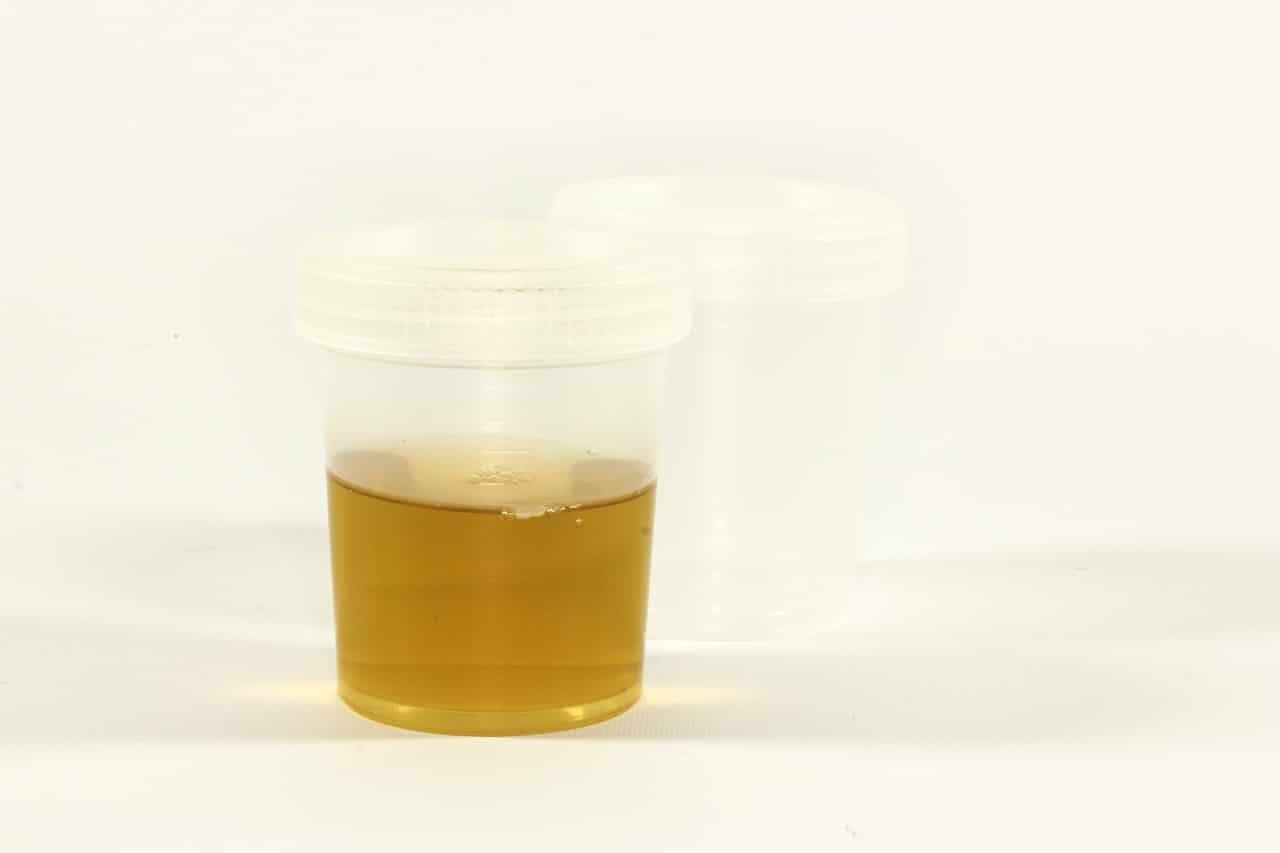 Blut-im-Urin-Hämaturie-Ursachen-Krankheiten-und-Behandlung