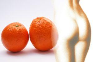 Cellulite-Behandlungen-Was-funktioniert-wirklich