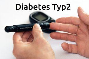 Diabetes Typ 2 - Ursachen, Risikofaktoren, Diagnose, Behandlung und Prävention