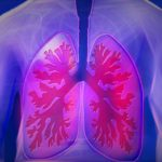 Emphysem-Lungenemphysem-Symptome-Ursachen-und-Behandlung-