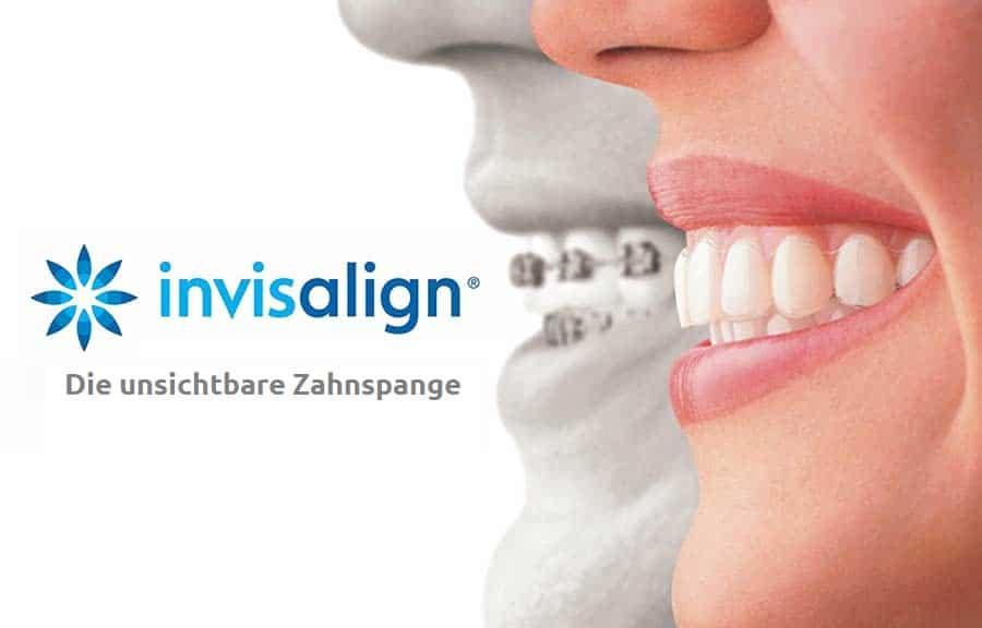 Invisalign-Unsichtbare-Zahnspange-Behandlung