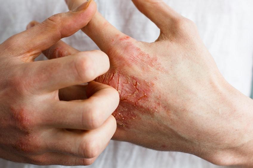 Krätze (Scabies) – Symptome, Ausschlag und Behandlung