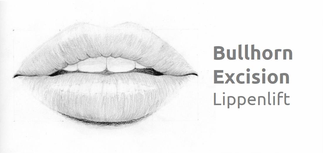 Lippenlift der Oberlippe – Bullhorn Excision