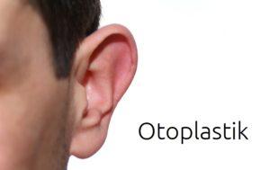 Ohrchirurgie (Otoplastik) – Ohren anlegen bei Segelohren