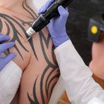 PicoSure-Tattooentfernung-Methoden-Technik