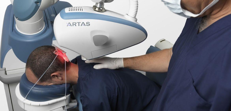 artas_haartransplantation_fue_roboter-1