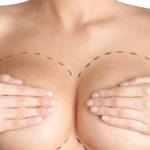 Was genau ist eine Bruststraffung? – FAQ