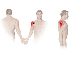 verltzung_delta_muskel_schulter_behandlung_Symptome