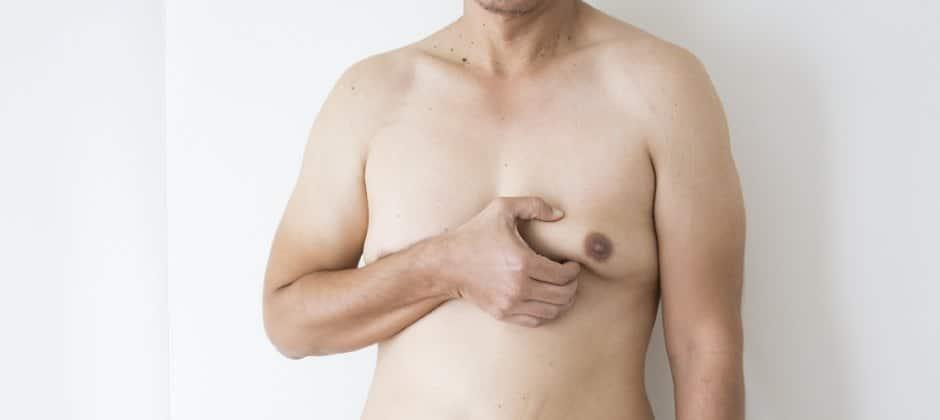 Gynäkomastie: weibliche Brüste bei Männern - Ursachen und Behandlung