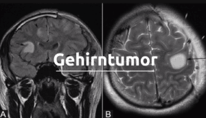 Schockdiagnose Gehirntumor: Symptome, Arten, Risiken und Behandlungsmethoden