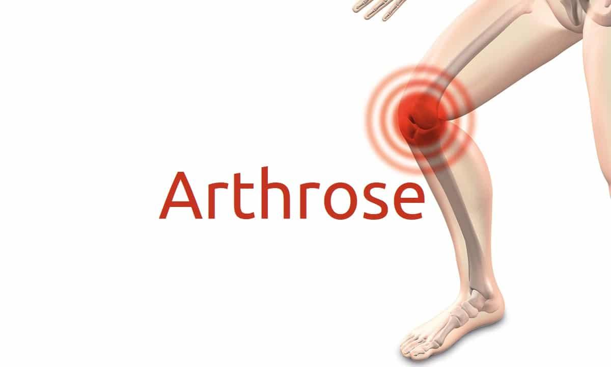 Arthrose: Symptome, Ursachen und Behandlung