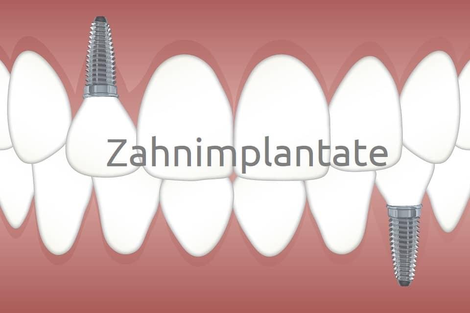 Die Vorteile von Zahnimplantaten