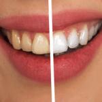 Gelbe Zähne: Ursachen, Behandlung, Hausmittel
