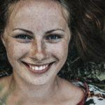 Unterschiede zwischen Melasma und typischer Hyperpigmentierung