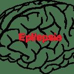 was_ist_epilepsie