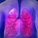 Lungenentzündung - Ursachen, Symptome, Diagnose und Behandlung