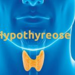 Unterfunktion der Schilddrüse - Symptome Diagnose und Behandlung