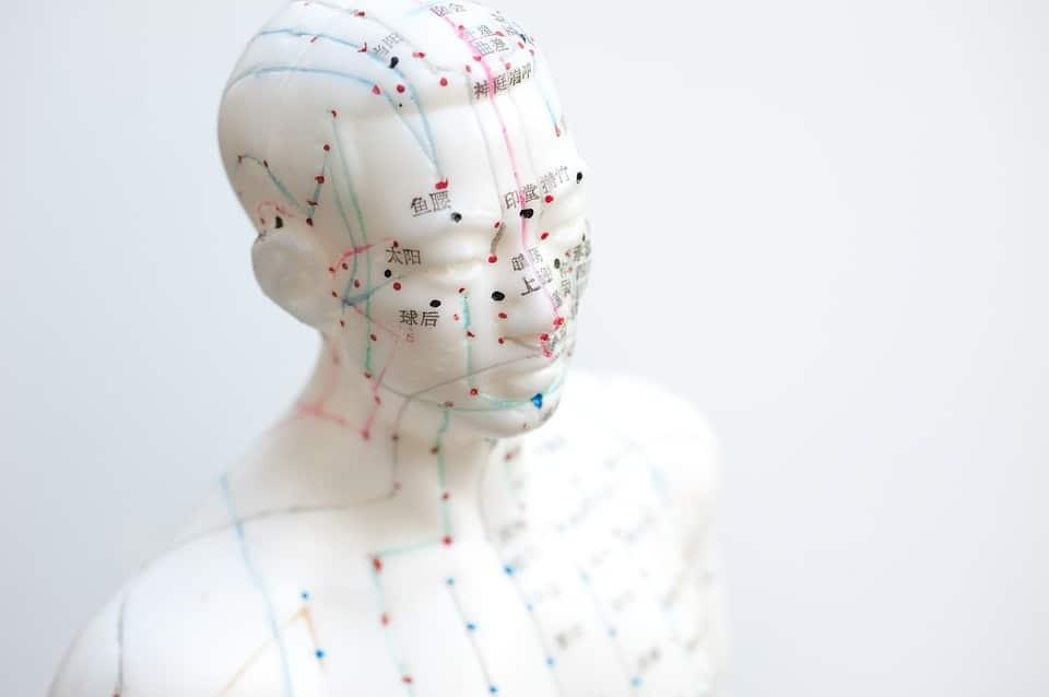 Wo hilft Akupunktur? Vorteile, Stellen und Methoden der Nadeln
