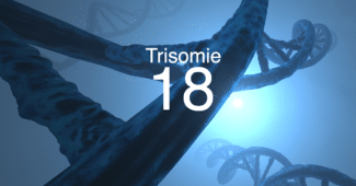 Was ist Trisomie 18?