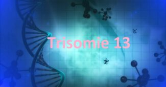 Trisomie 13 Patau Syndrom