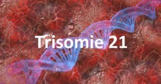 Trisomie 21 - Das Down-Syndrom