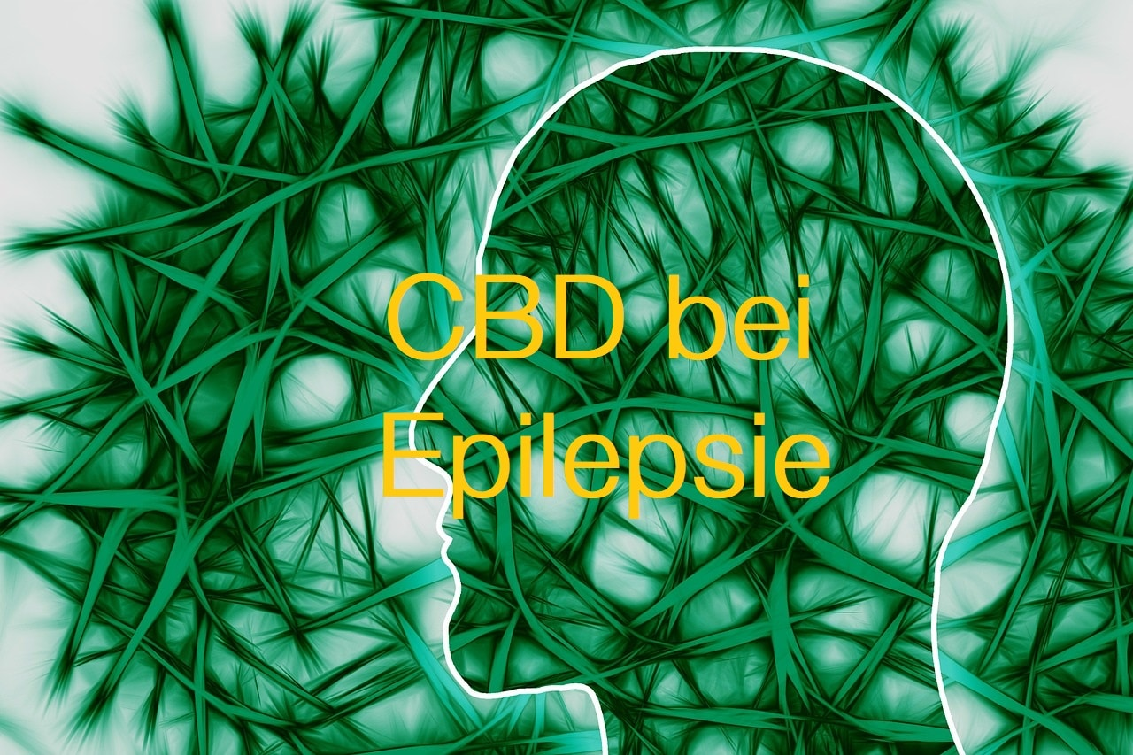 CBD bei Epilepsie und epileptischen Anfällen
