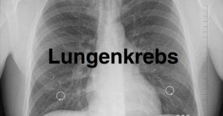 Was ist Lungenkrebs?
