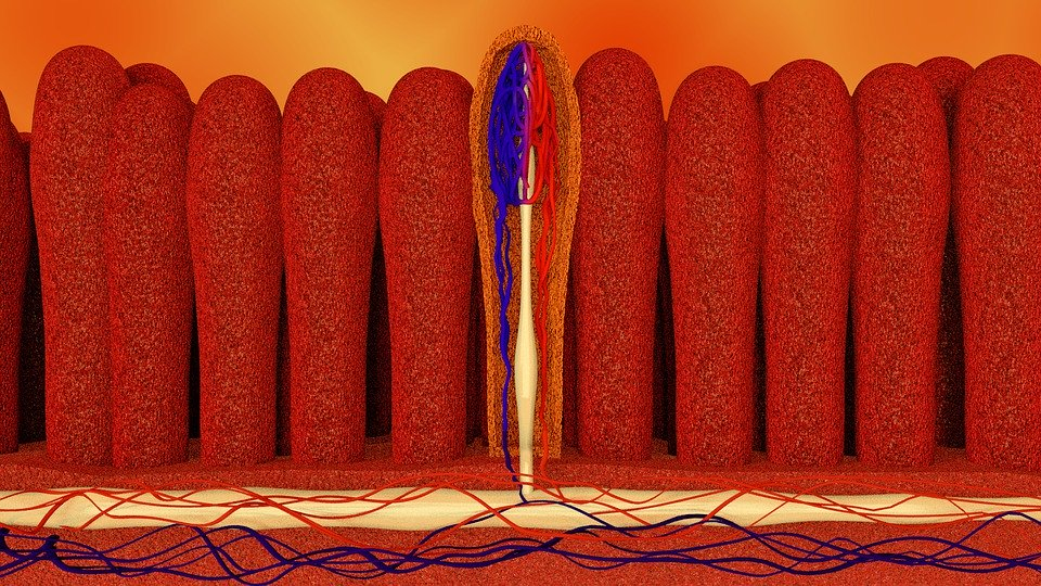 Leaky Gut Syndrom - Ursachen und Anzeichen für einen undichten Darm