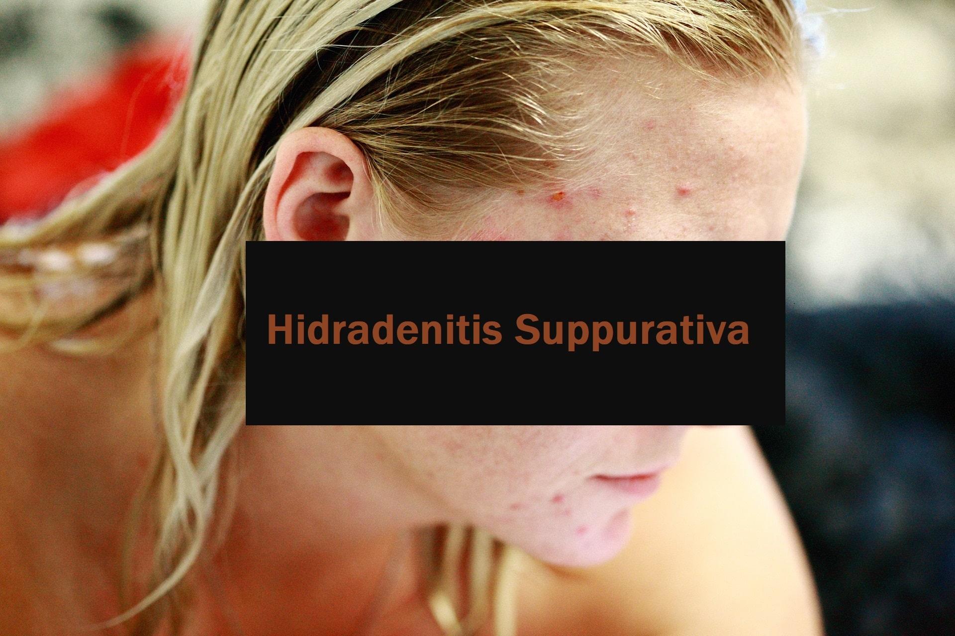 Ein Überblick über Hidradenitis Suppurativa