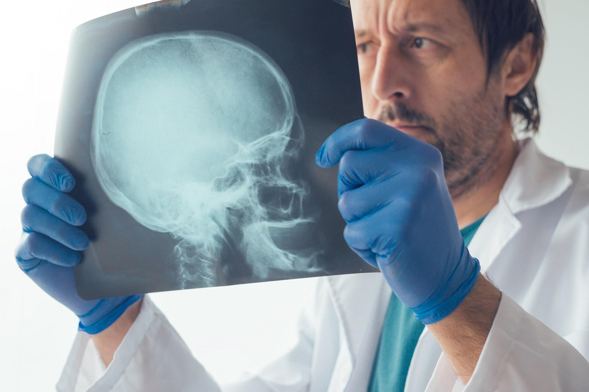 Unbewusstes Zähneknirschen (Bruxismus) - Botox hilft