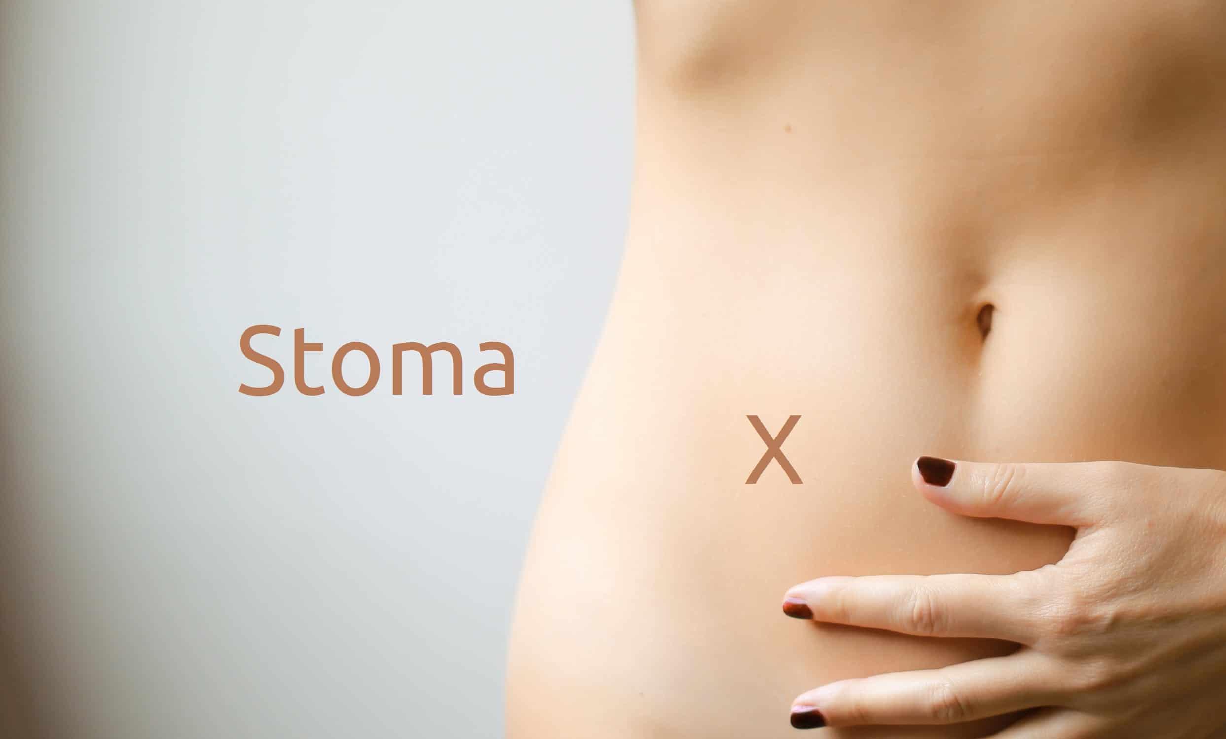 Was ist ein Stoma - Kolostomie oder Ileostomie