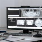 Kiefergelenkprobleme - Was tun bei CMD?